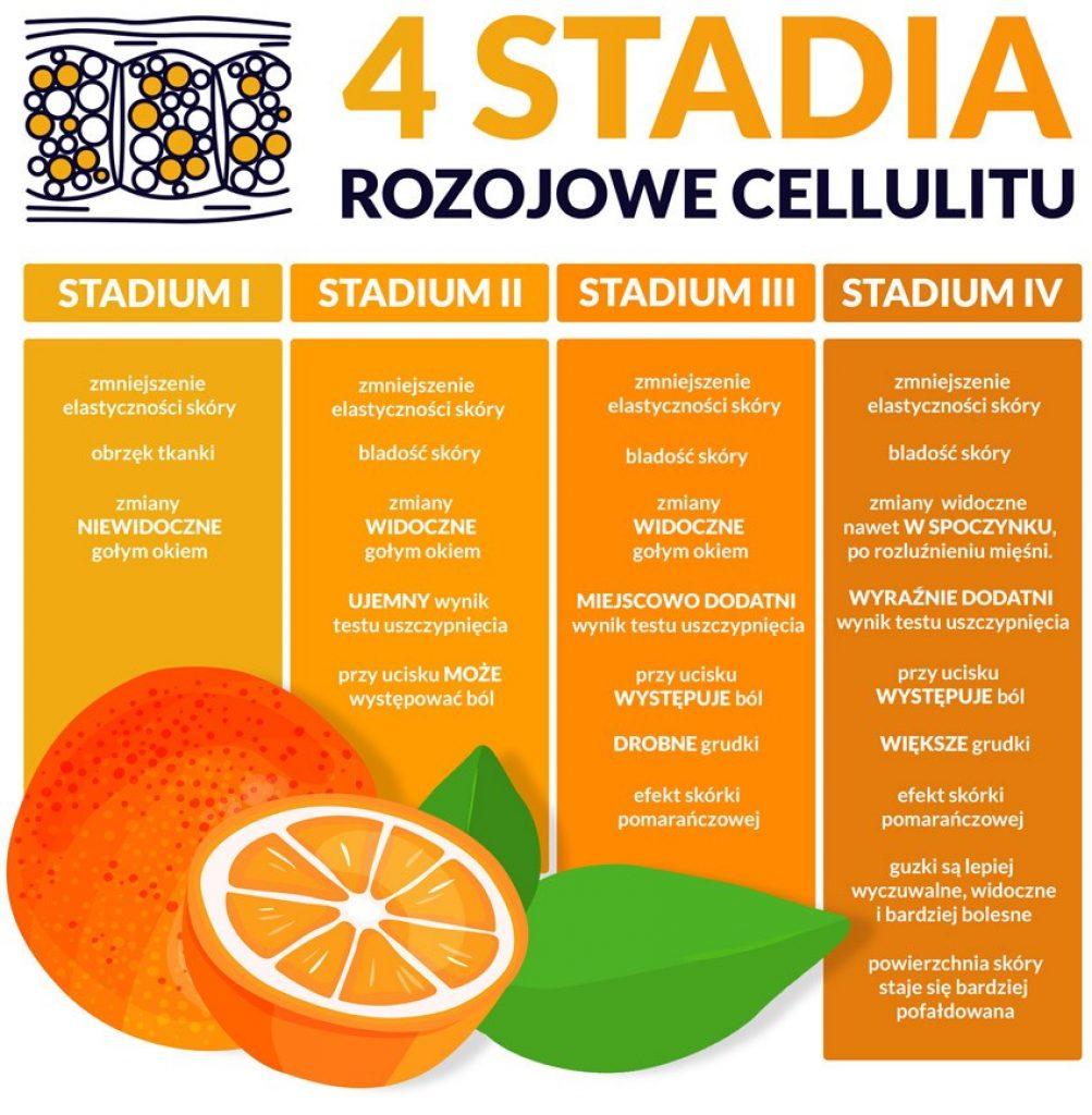 4 stadia rozwojowe cellulitu