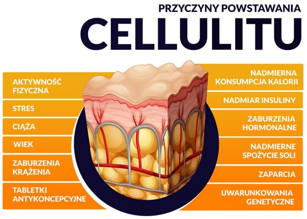 Przyczyny powstawania cellulitu infografika